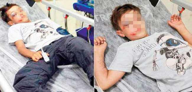 Küçük çocuk çarptı diye betona fırlattı