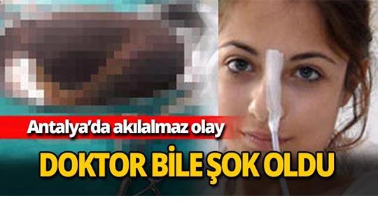 Antalya'da doktor bile şok oldu