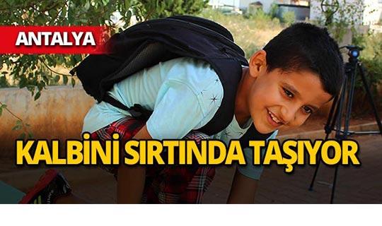 Antalya'da 8 yaşındaki çocuk kalbini sırtında taşıyor