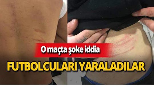 'Futbolcuları jiletle yaraladılar' iddiası ortalığı karıştırdı!