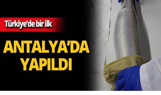 Türkiye'de ilk kez yapıldı!