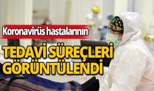 Türkiye'deki koronavirüs hastalarının tedavi süreçleri görüntülendi!