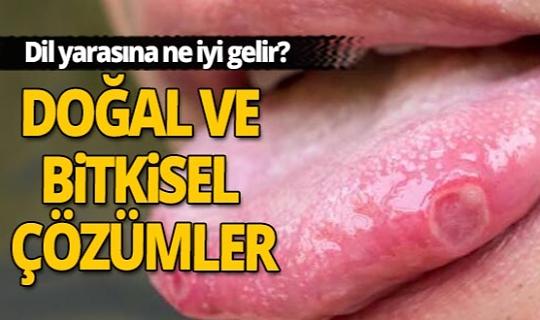 Dilinizdeki yara canınızı yakmasın...