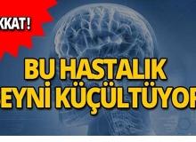 Bu hastalık beyni küçültüyor!