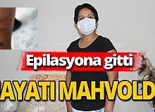 Antalya haber: Güzelleşmek isterken vücudu yandı