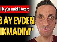 Antalya haber: Türkiye'de ilk yüz nakli ona yapılmıştı, aldığı tedbirleri anlattı