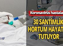 Hastaları 30 santimlik hortum hayatta tutuyor
