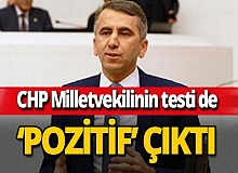 CHP Hatay Milletvekili Serkan Topal koronavirüse yakalandı