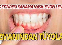 Diş etindeki kanama nasıl engellenir? İşte uzmanından ipuçları...