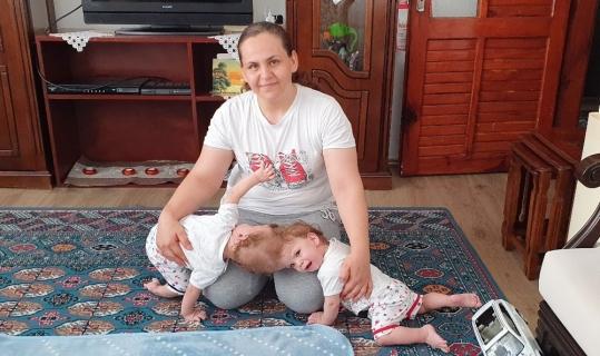 Kafadan yapışık siyam ikizleri ameliyatla bir birinden ayrıldı.