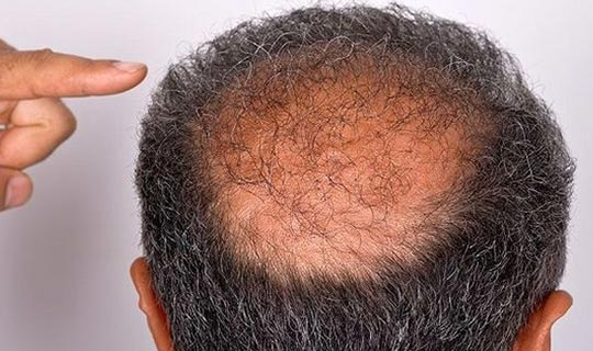 Saç dökülmesi hastalık habercisi!