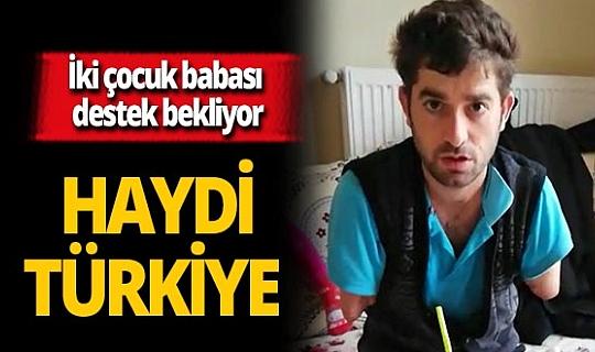 2 çocuk babası Burhan Doğruyol protez kol için destek bekliyor