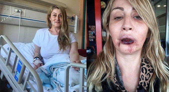 Estetik ameliyatla hayatı kararan kadına Prof. Dr. Ömer Özkan sahip çıktı