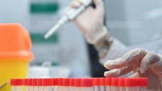 Umutlandıran haber: Koronavirüse karşı yeni ilaç geliştirildi