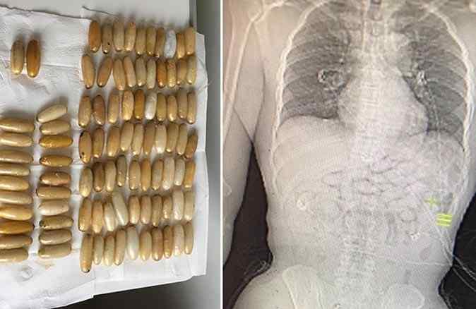 İstanbul Havalimanı'nda fenalaşan Ganalı yolcunun midesinden uyuşturucu çıktı