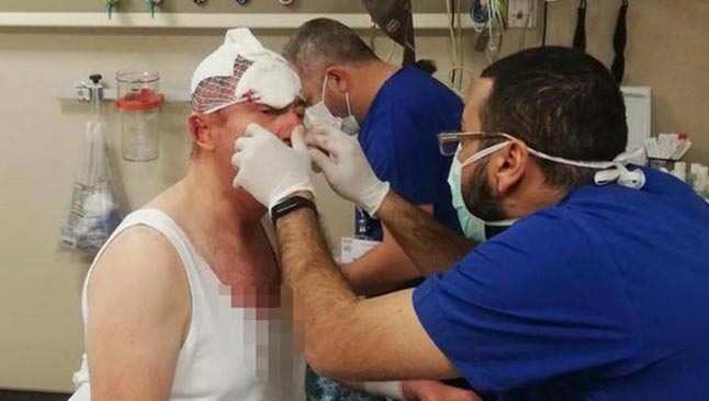 Selçuk Özdağ'a saldırıyla ilgili 4 şüpheli daha gözaltına alındı
