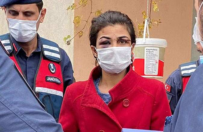 Melek İpek'in avukatları 'Örselenmiş kadın sendromu' raporu için başvuru yaptı