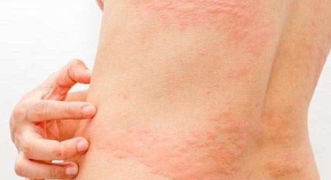 Dikkat! Alerjik hastalıklar ölümcül sonuçlara sebep olabilir