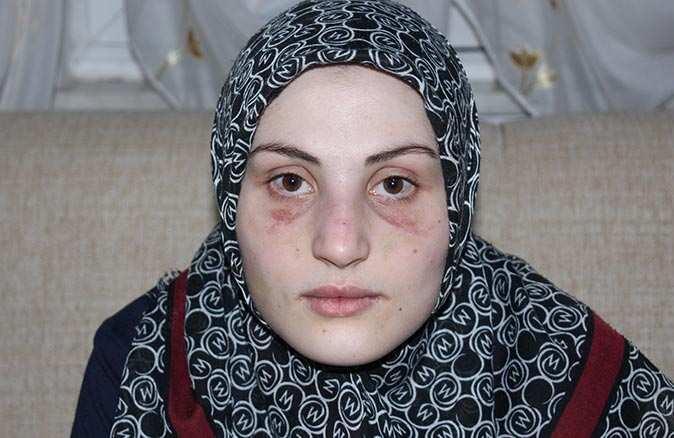 20 yaşındaki Büşra şiddetin her türlüsüne maruz kalmış