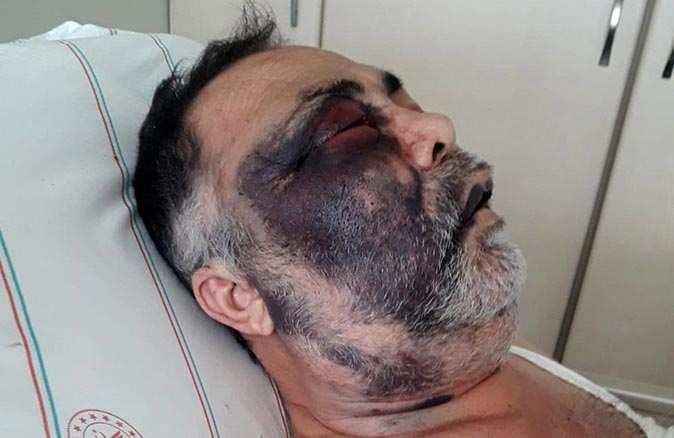 Antalya'da darp edilen Mümin Kara hayatını kaybetti