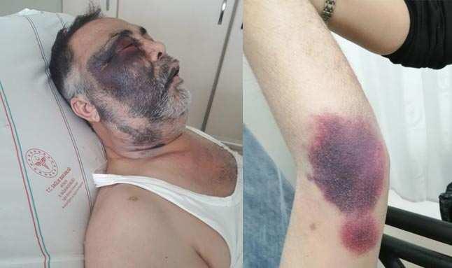 Antalya'da insanlık dışı hareket! Öldüresiye dövdüler...
