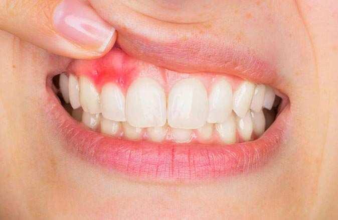 Diş eti hastalığı olan kişiler dikkat! Koronavirüsü ağır atlatabilirsiniz