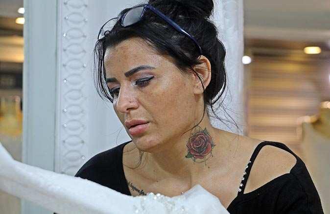 Güzellik salonu kurbanı genç kadın anlattı: 'Yüzüme asit döktü'