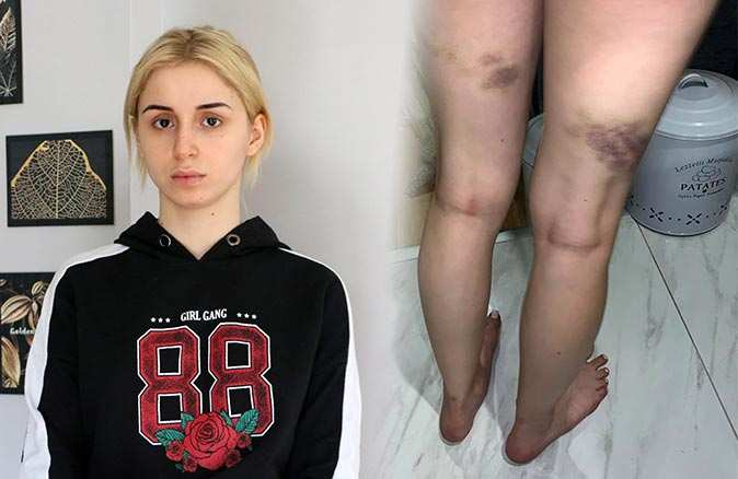 Annesinin sevgilisi 20 yaşındaki Gizem'e dehşeti yaşattı