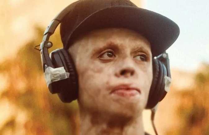 8 yaşında vücudunun yüzde 90'ı yanan genç: Kaza sonrası ölümden çok hayattan korkuyorum