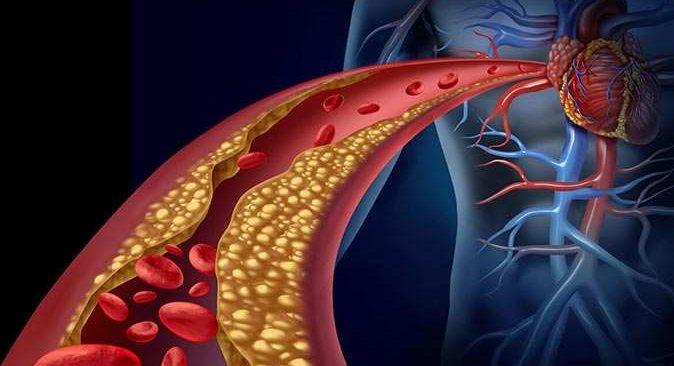 Kolesterol aşısı yüksek kolesterollü hastalara umut oldu