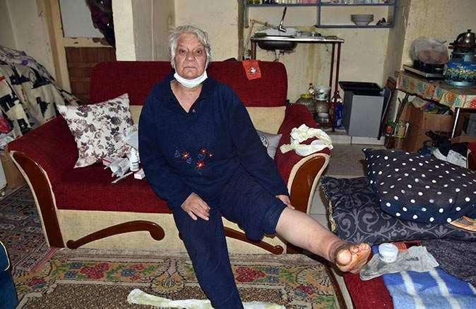 Şeker hastası Ayşe Işık yetkililerden yardım bekliyor