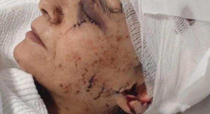 Koaceli'nde cani koca dehşet saçtı! Eşine satırla saldırdı