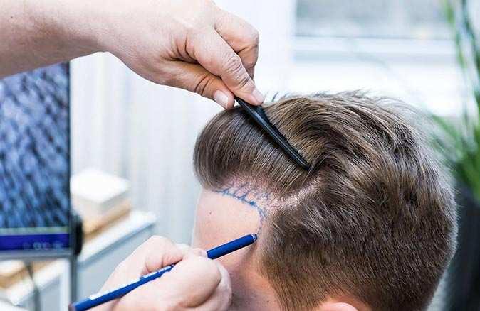 Saç ekiminde bilinmesi gereken 4 altın kural