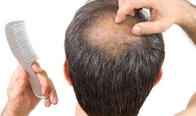 Ateşli hastalıklar da saçlarda dökülmeye yol açabiliyor