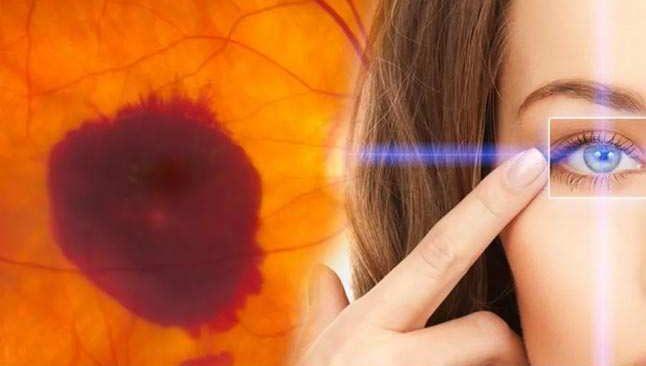 Dikkat! 'Sarı nokta hastalığı için en önemli risk faktörü yaştır'