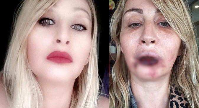 Güzelleşmek isterken dudağından olan Songül Uzunoğlu: Mücadelem sürecek