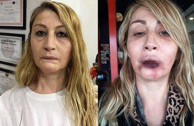 Güzelleşmek isterken hayatı kabusa dönen Songül Uzunoğlu: Çok sayıda mağdur kadın var