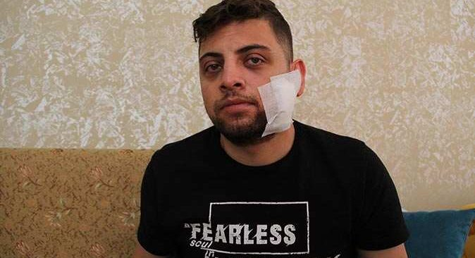 Antalya'da kadına şiddeti engellemeye çalışırken kabusu yaşadı