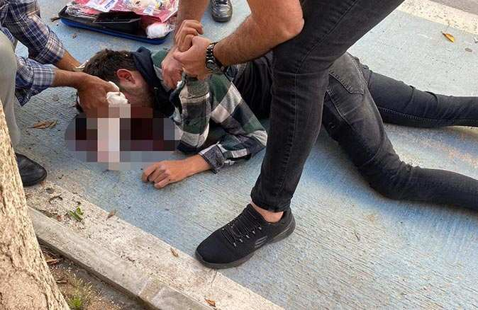 Antalya'da motosiklet köpeğe çarptı! O anlar saniye saniye kaydedildi