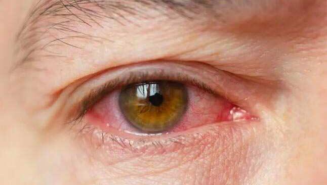 Yarım saatte tedavisi mümkün: Göz kapağı içe dönmesi (entropium) belirtileri neler?