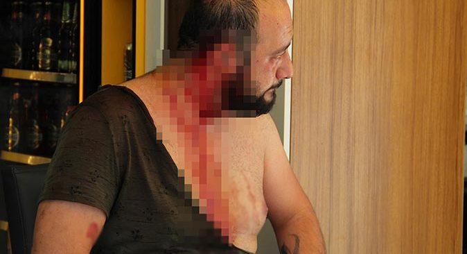 Antalya'da güvenlik kamerası kurulumu tartışması kanlı bitti! Esnafa şişeyle saldırdı