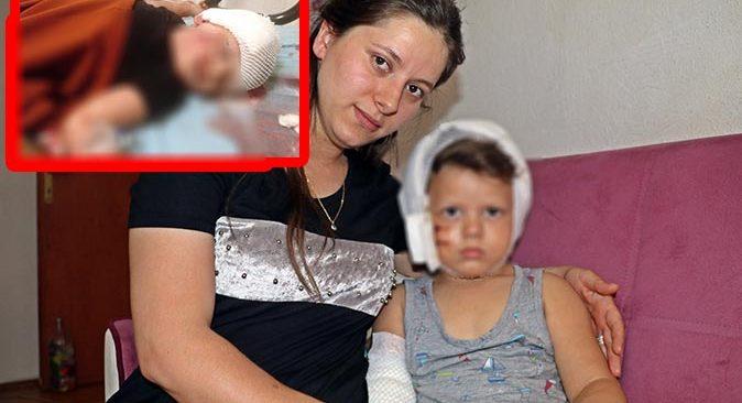 Antalya'da 3,5 yaşındaki Yağız ölümden döndü