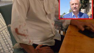 Didim Belediye Başkanı Deniz Atabay'a beyzbol sopalı saldırı!
