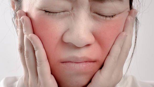 Gül hastalığı nedir? Gül hastalığı tedavisi nasıl olur?