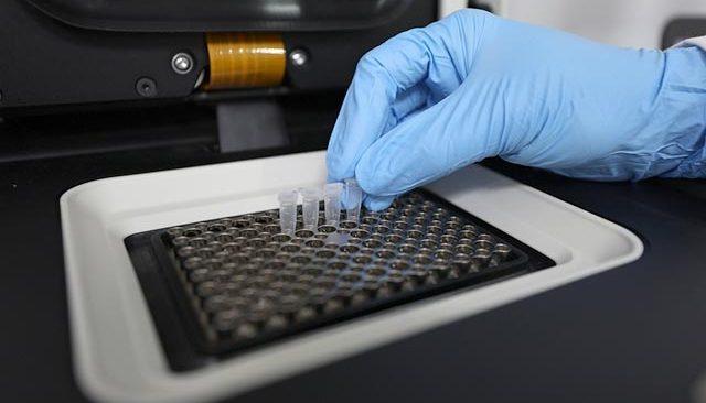 Koronavirüs Bilim Kurulu Üyesi Prof. Dr. Şener: Delta varyantı yaygın olarak görülmeye başladı