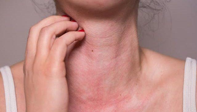 Yaz aylarında güneş alerjisine dikkat