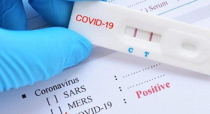 Son dakika.... Sağlık Bakanlığı 24 Temmuz koronavirüs vaka sayılarını açıkladı