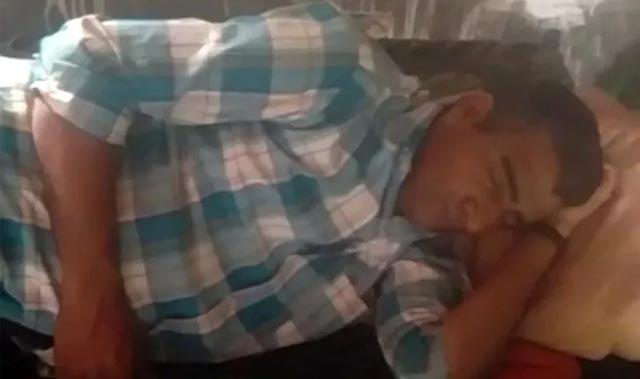Yılın 300 günü uyuyor! Ailesi uykusunda yıkayıp yemek yediriyor