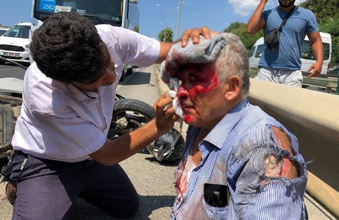 Antalya'da midibüsün çarptığı motosiklet sürücüsü yaralandı